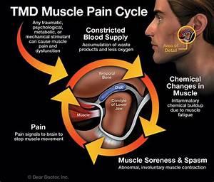 Tmj   Ultimate Guide To Temporomandibular Joint