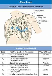 Picture Of 12 Lead Ecg Placement
