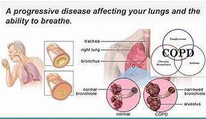 Stage one copd