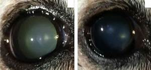 new eye drops can dissolve cataracts with no need for surgery