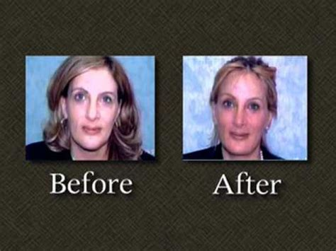 linda tripp facelift revision surgery dr mark richards
