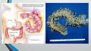 physical exam findings for peptic ulcer disease