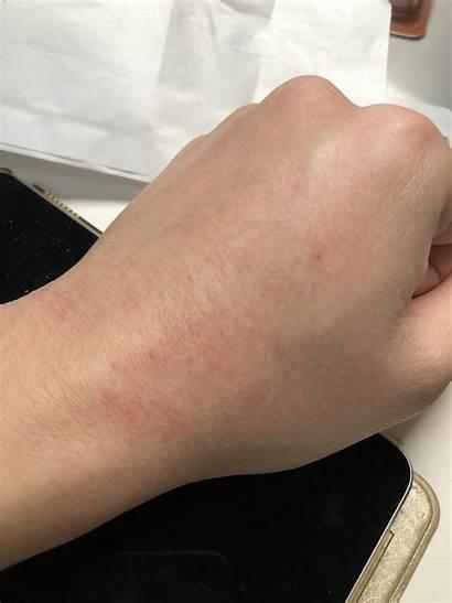 Rash Hand Accutane Expecting Anyone 20mg