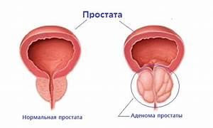 Аденома простаты лазерное лечение москва