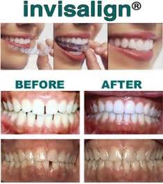 Invisalign Cost Estimate by How Much Does Invisalign Cost
