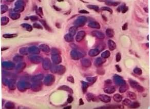 Stratified Cuboidal Epithelium