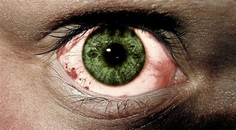 chlamydien im auge ursachen symptome und behandlung