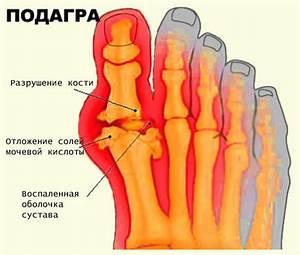 Обезболивающие средства от боли в суставах