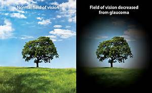Understanding Glaucoma  Glaucoma Eyes and Vision