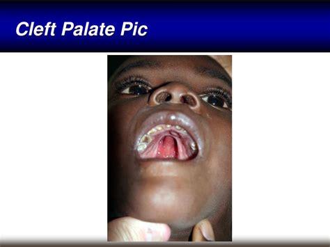 Ppt Neonatal Emergencies Powerpoint Presentation Id335160