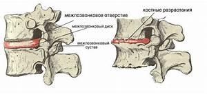 Алмаг 01 лечение остеохондроза поясничного отдела позвоночника
