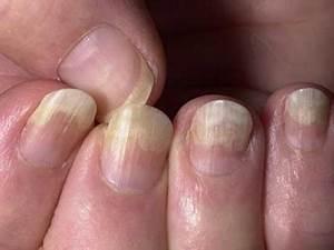 Грибок ногтя на указательном пальце руки