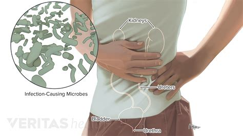Lower left abdominal lump explained 8 lump on the lower left abdomen conditions how to treat a lump on the lower left abdomen lump on lower left it is simply a growth of fat between the muscle layer and the skin above it. Lower Left Back Pain from Internal Organs