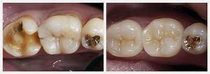 Before & After Dental Cases - Smile Design Dentist Granada ...
