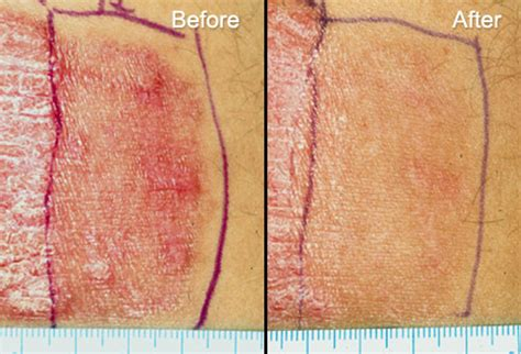 light treatment for psoriasis laser treatment for psoriasis using the modern devices