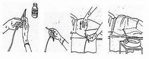 Лечение носового кровотечения при гипертонической болезни