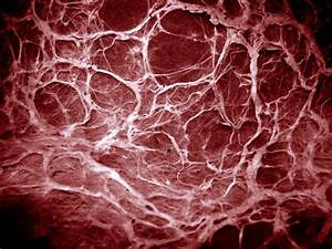 40 best images about FX - Gripping Veins on Pinterest ...