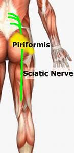 The Force Expansive  The Piriformis Adventure