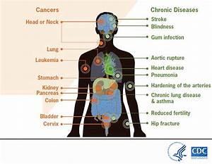 Risks From Smoking Diagram
