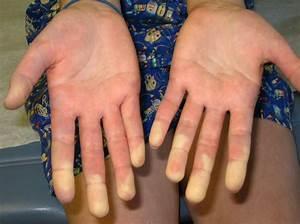 bleke huid