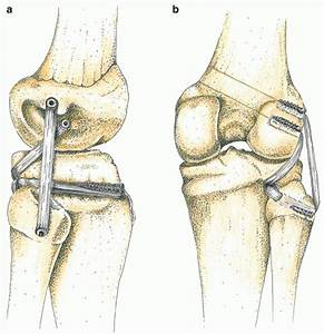 Posterior Cruciate Ligament  Posterolateral Corner And