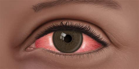 conjunctivitis   pink eye american academy