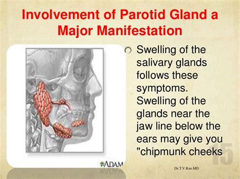 Parotid Salivary Gland Swelling Treatment