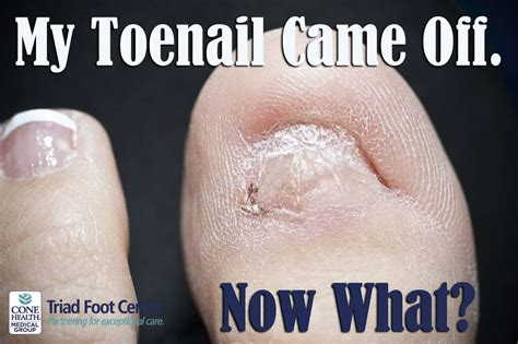 I though maybe he had gotten his had smushed somewhere. When your toenail comes off, here are a few things you ...