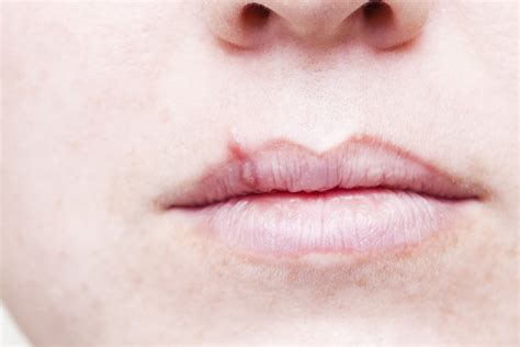Almost Everyone Has Oral Herpes, Including Me