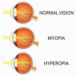 Myopia Hyperopia Diagram