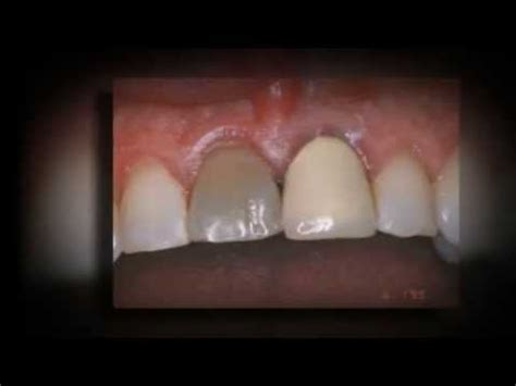 crowns  front teeth youtube