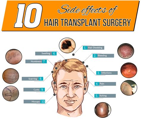 10 Side Effects Of Hair Transplant Surgery. Imrt Radiation Therapy For Prostate Cancer. Best Credit Card For First Time Users. American Movers And Storage Association. How To Connect Brother Wireless Printer
