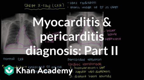 diagnosis  myocarditis  pericarditis part  nclex