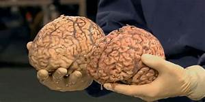 Healthy Human Brain Compared with 90 Year Old Brain