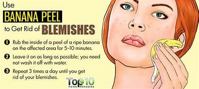 Blemishes Banana Remedies Peel Skin Pimples Peels