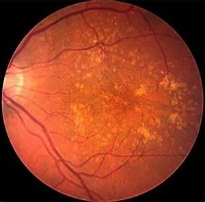 Web Portals Cholesterol Deposits In The Retina Image Eurekalert