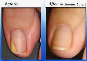 Toenail-Fungus Nail Treatment