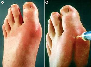 Gout  What It Is  How It U0026 39 S Treated  And How To Prevent It