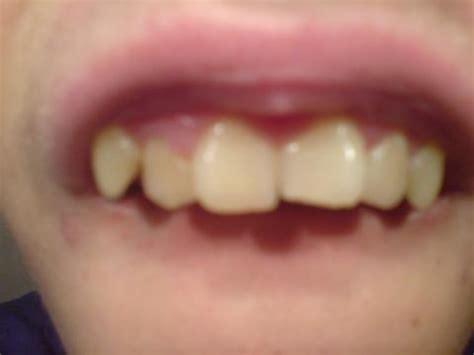 zahnproblem stueck zahnschmelz abgebrochen zaehne