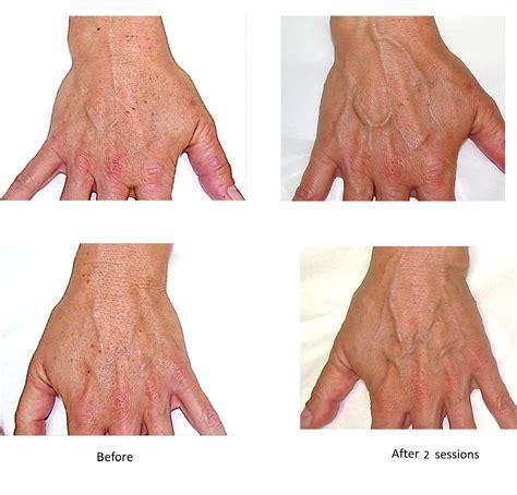 Hands Rejuvenation Canadian Optic Laser Center Col