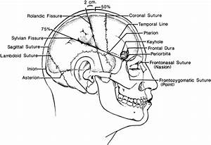 Sites commonly marked on the scalp before application of ...