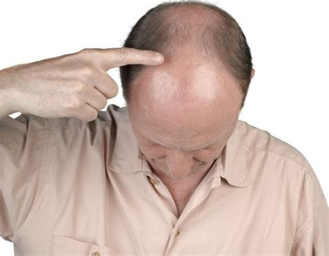 How to Reverse Male Pattern Baldness | Hair Transplant In