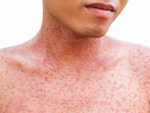 Measles Case Confirmed Patient Visited Chicago Restaurant
