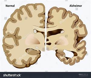 Schematic Illustration Dissection Healthy Brain One Stock ...