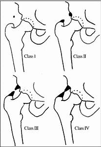 Heterotopic Ossification In Rehabilitation Patients Who