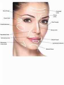 Botox Injection Sites Face Diagram