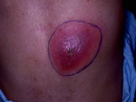 sore red lump on leg
