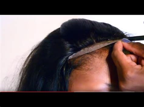undetectable lace closure install  hairline full