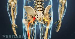 Back Pain  A Guide For Understanding Back Pain