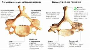 Лекарства от артроза шейного отдела позвоночника